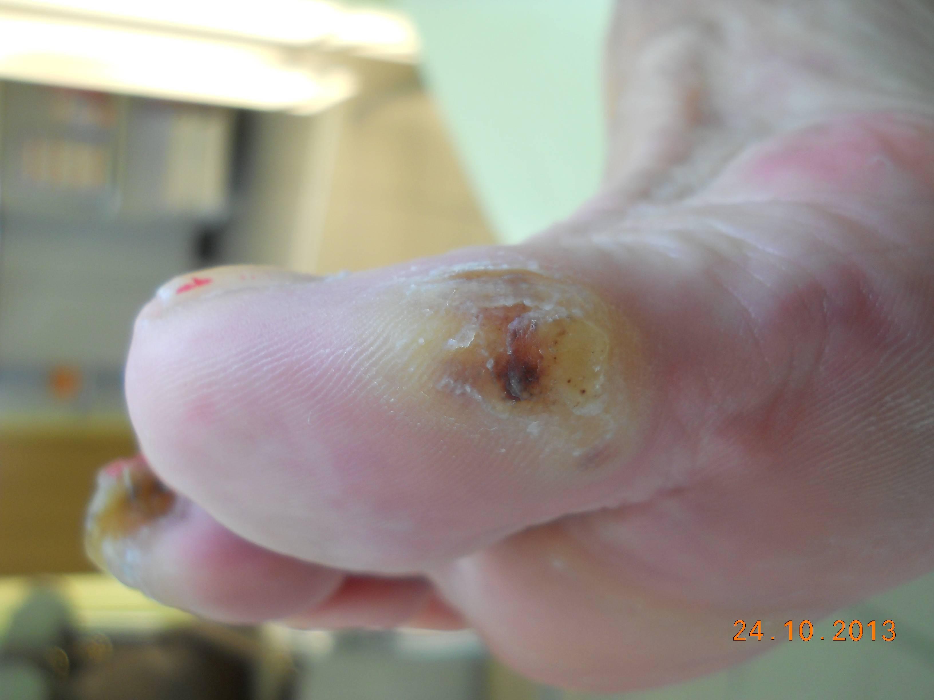 krwiak śródtkankowy w ZSC - przed zabiegiem