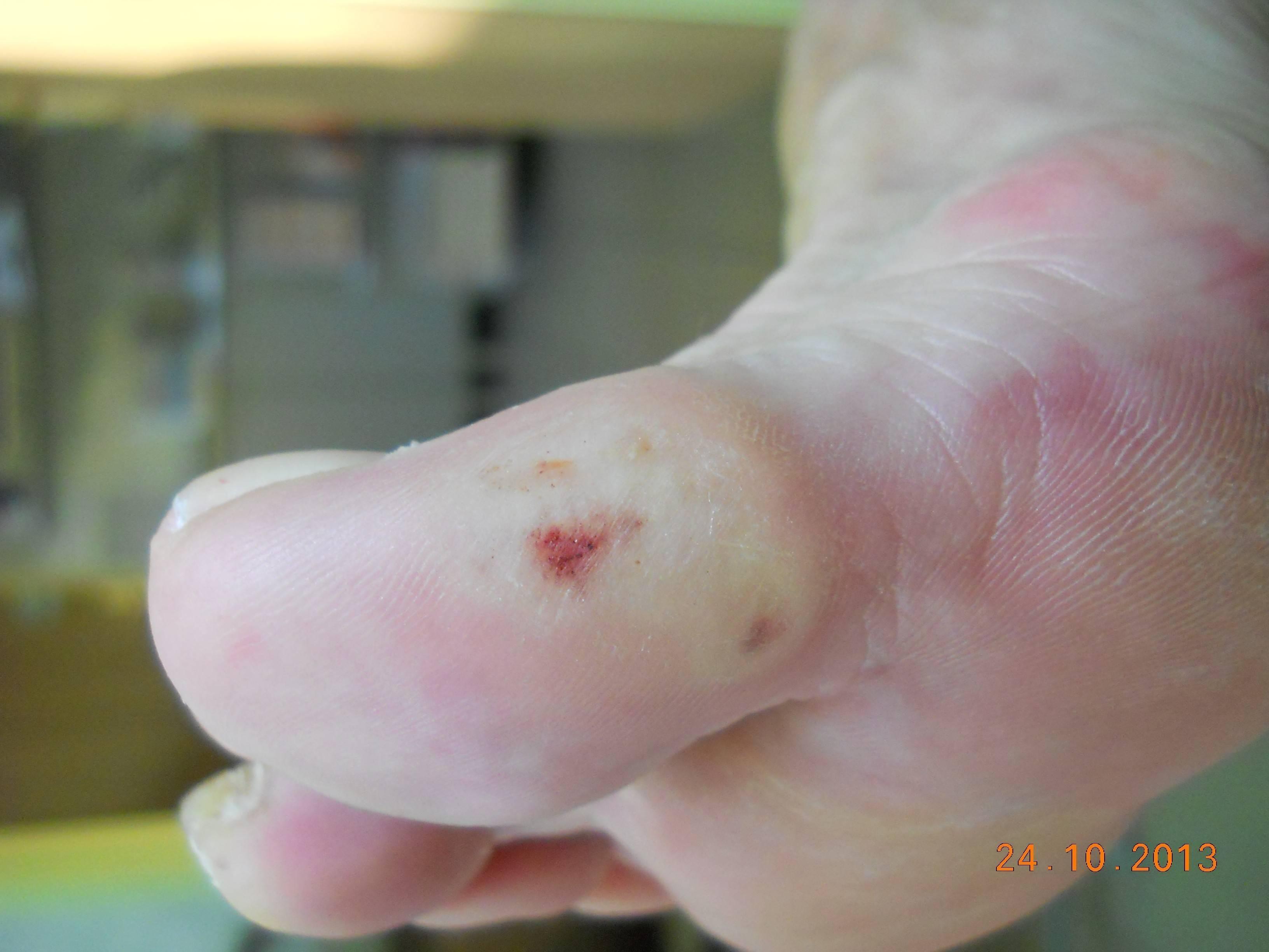 krwiak śródtkankowy w ZSC - po zabiegu