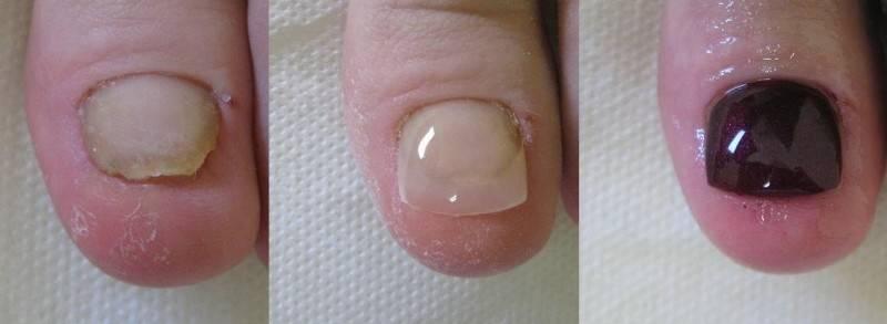 rekonstrukcja paznokci 1