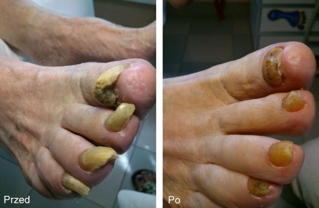 paznokcie starszy pan 1-1