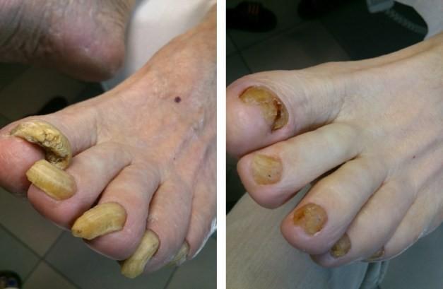 paznokcie starszy pan 2-1