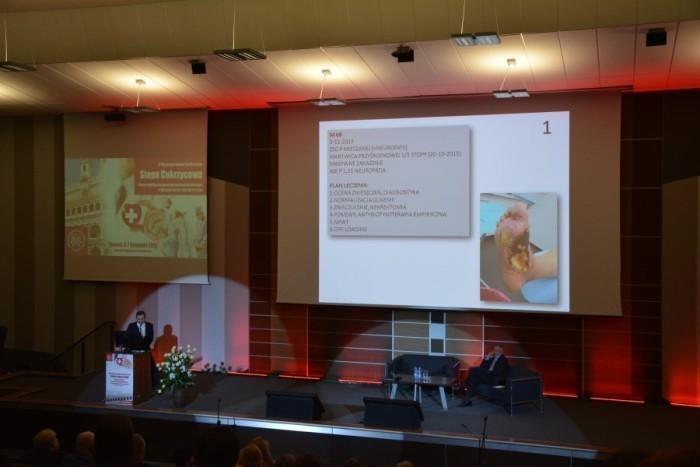 konferencja-stopa-cukrzycowa-poznan-podologia-038