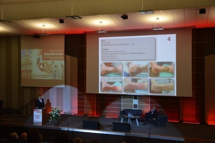 konferencja-stopa-cukrzycowa-poznan-podologia-039