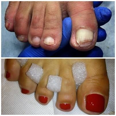 zdrowe stopy szczecin