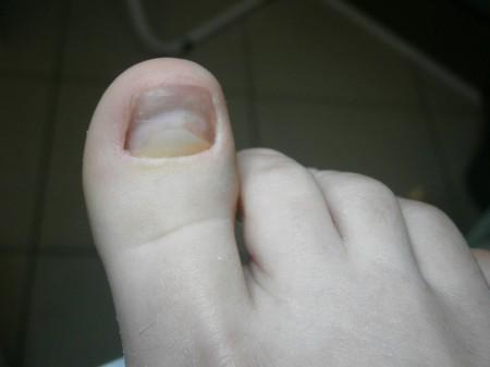 rekonstrukcja paznokcia po