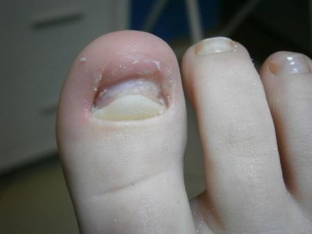 rekonstrukcja paznokcia w trakcie